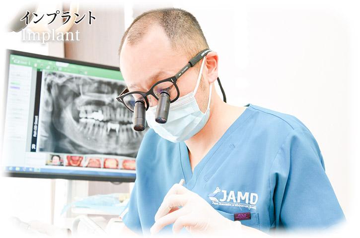 歯科口腔外科 | Implant