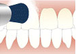 歯のクリーニング 自宅での使用方法の説明